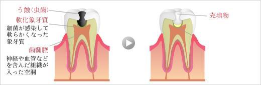 普通の虫歯の治療