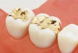 部分的な虫歯の場合