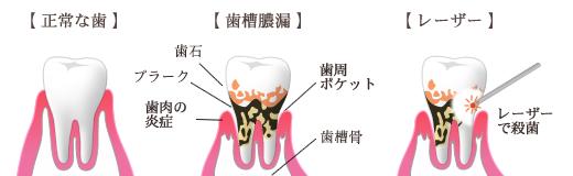 歯槽膿漏の症状